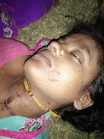 dowry-murder-madhubani