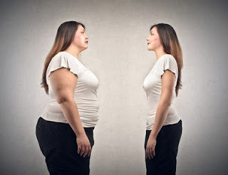 volver a ganar peso después de una cirugía de la obesidad