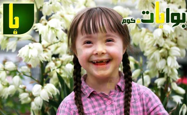 متلازمة داون (الطفل المنغولي)