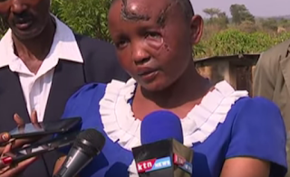 Mwende is the woman who was chopped off body parts in Machakos by her husband.