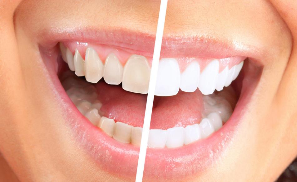 Cara Memutihkan Gigi Secara Alami Cepat Dan Permanen Cara