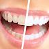 Cara Memutihkan Gigi Secara Alami Cepat Dan Permanen