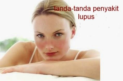 tanda-tanda dan cara penularan penyakit lupus