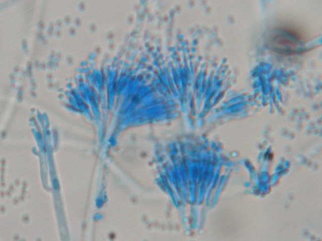 Contoh penampakan jamur Penicillium, dari divisi Ascomycotina