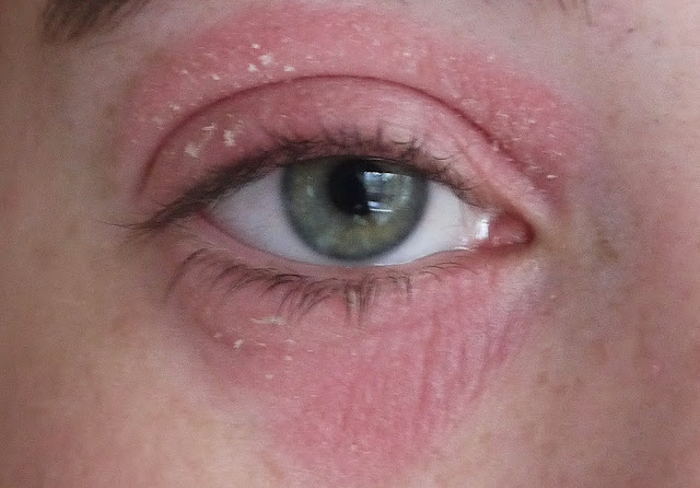 Eczema around eyes and face