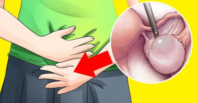 Signes avertisseurs de kystes ovariens que la plupart des femmes ignorent tous les jours (et quoi faire si vous les voyez)