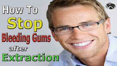 How to stop bleeding gums after tooth extraction