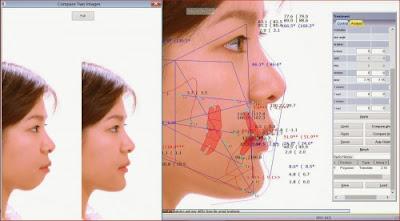 Phân tích cấu trúc giải phẫu răng vẩu xác định răng vẩu có di truyền không