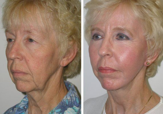 Increasingly More Women And Men Are Showing Great Before After Photos Of Them That Show The Success Story