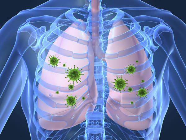 Cara Mengobati Infeksi Tuberkulosis (TB)