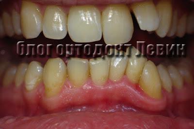 пациент улучшил качество чистки зубов, воспаление десны уменьшилось