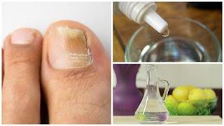 Faites votre propre soin anti-champignons des ongle naturel