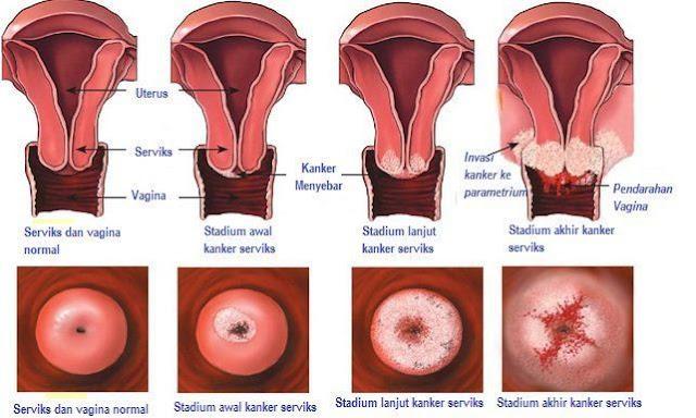 8 Penyakit dan Kelainan pada Sistem Reproduksi Manusia