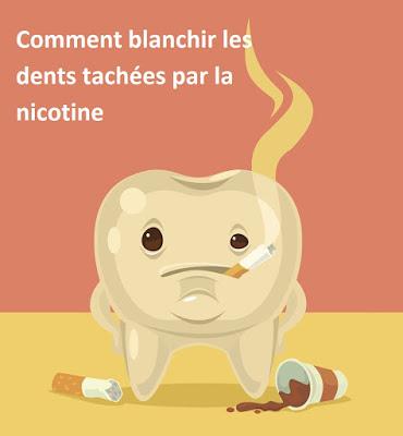 Comment blanchir les dents tachées par la nicotine