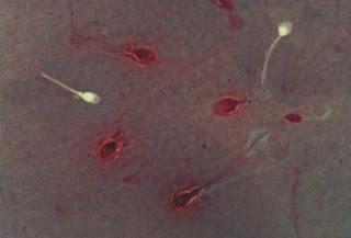 Viabilitas sperma hidup tidak ada noda