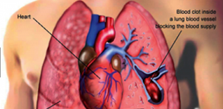 A pulmonary embolism is a blocked blood vessel in your lungs
