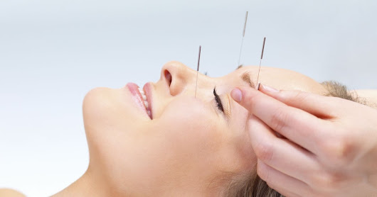 Health Benefits Of Acupuncture In Woodbridge VA