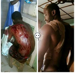 See How A Young Man Was Brutally Stabbed For Rescuing A Lady From Been Physically Abused (Graphic Photos)