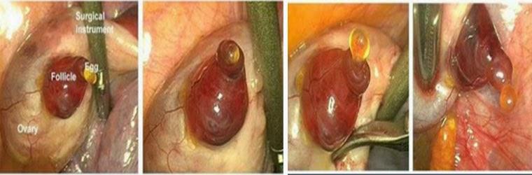 anovulasi, ovulasi, ovum , sperma , senang hamil,mudah hamil, tak subur