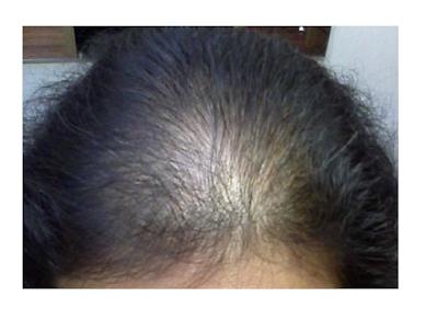 تساقط الشعر الميكسوديما الدرقية الثيروكسين