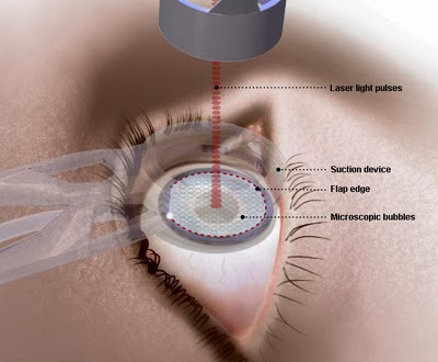 Laser Trabeculoploasty and Glaucoma Surgery