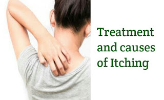 natural itching treatment