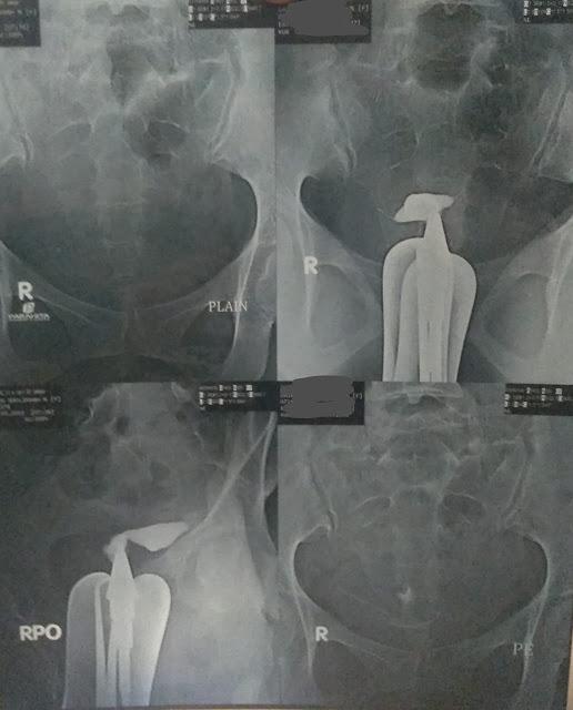 Foto rontgen xray HSG : non-paten pada kedua tuba