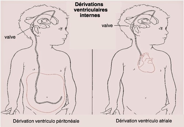 hydrocéphalie infirmier traitement dérivation ventriculaire