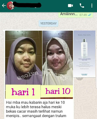 Jual Obat Penghilang Kantung Mata Trulum Skincare Sukajadi Kota Bandung