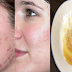 How to Get Rid of Pimples Overnight Naturally and Fast Using Natural Ingredients