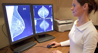 Understanding the characteristics of stage 1 of breast cancer before too late