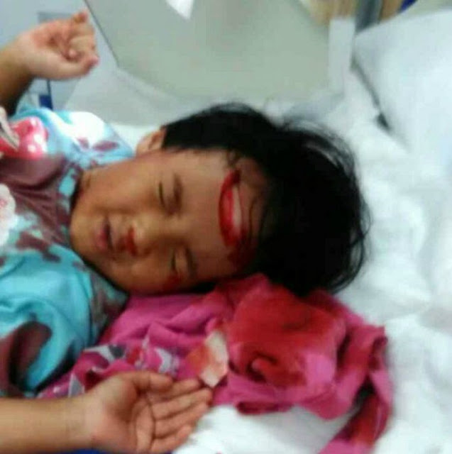 ATTENTION PARENTS! Father-daughter bonding leaaves child's skull exposed