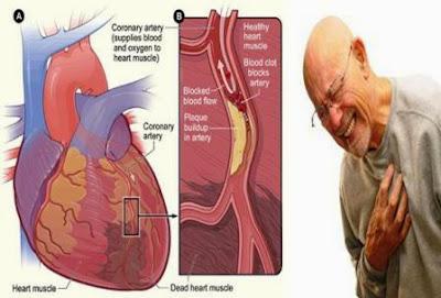 Gejala Penyakit Jantung dan Cara Mencegahannya