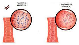Народно лечение на бактериална вагиноза