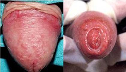 Balanitis inflamacion del prepucio