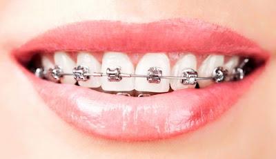 sau khi bọc sứ có niềng răng được không -4