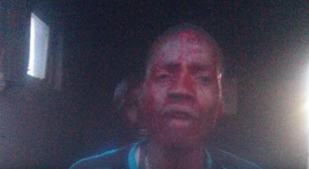 El hombre golpeado. FOTO: Especial