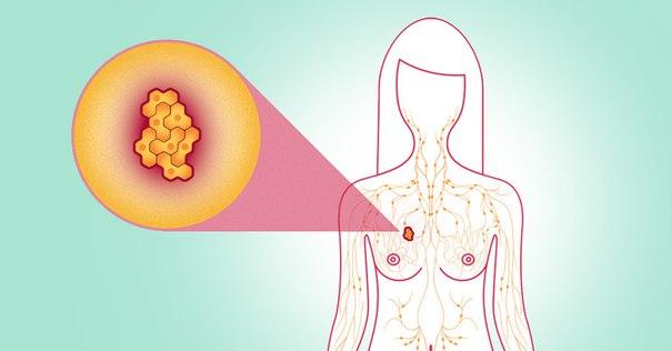 7 обыденных вещей, которые могут привести к раку груди