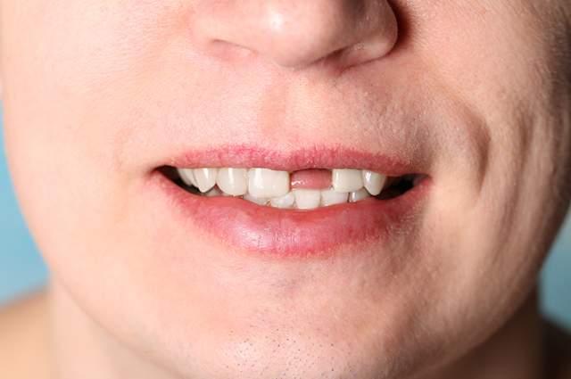 Mulheres são mais vulneráveis à perda dentária do que os homens