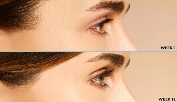 latisse1 Latisse vs. Other Long Lash SolutionsAesthetics Beauty