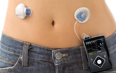 Processo bomba infusão insulina plano saude advogado adj blog