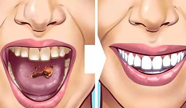 cara menghilangkan bau mulut dengan cengkeh