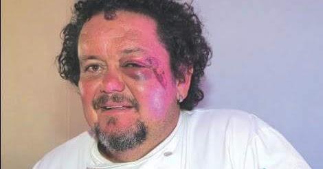 #ATTACK: Afrikaner restaurant owner, Gerbrandt van Deventer, survives brick-bashing attack in Oudtshoorn on Monday