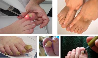 Ni con el procedimiento quirúrgico puede quitar estos hongos en los pies, y estos 2 componentes lo desaparecieron