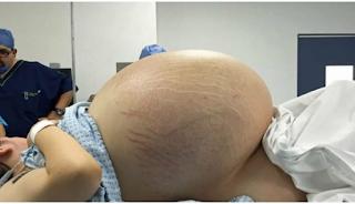 Γυναίκα μοιάζει να είναι έγκυος σε πεντάδυμα, Mετά βλέπει την τομογραφία και ΔΕΝ μπορεί να πιστέψει στα μάτια της