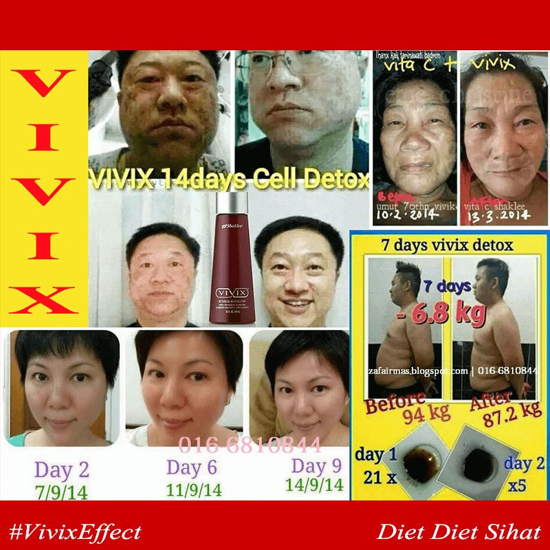 detox muka kulit cantik dengan vivix