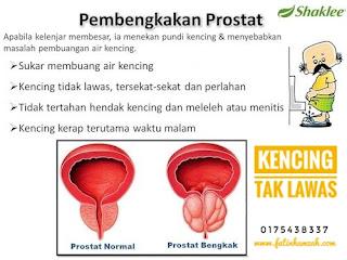 Prostat-bengkak