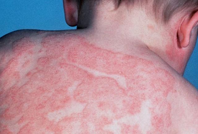 Perbezaan Antara Ekzema dan Psoriasis