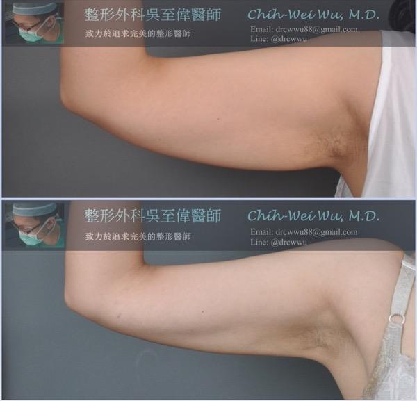 手臂抽脂案例,對於肥厚的臂膀與手臂,整體抽脂可以達到令人滿意的效果