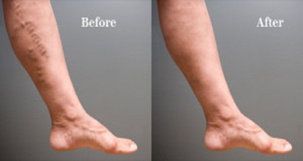 2 Steps to Get Rid of Varicose Veins